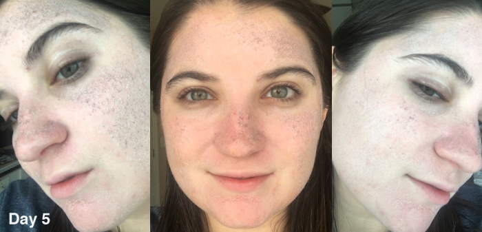 I got two lasers to the face for beauty – the price, the